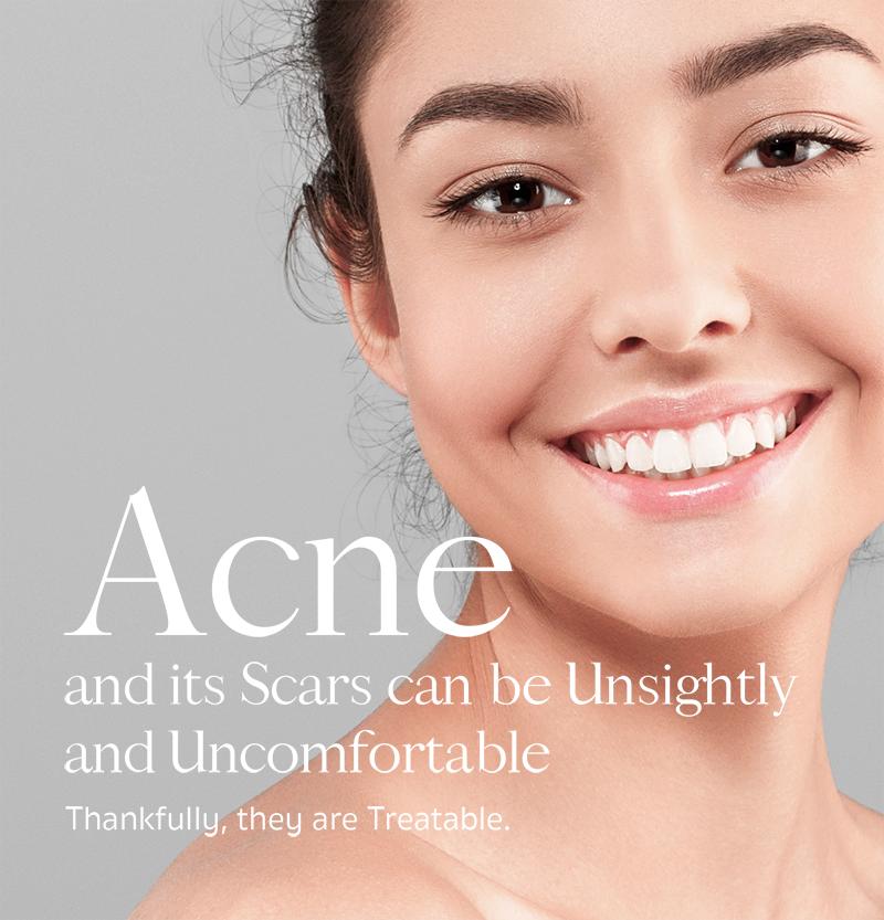 Acne & Acne Scars