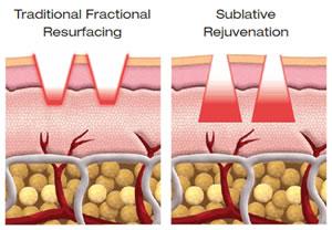 eMatrix™ Sublative Rejuvenation