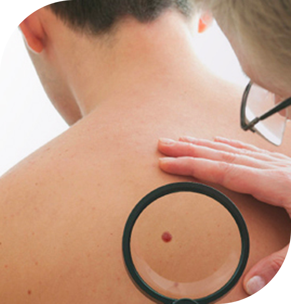 Moles for Removal