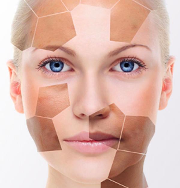 Skin Lightening Programme