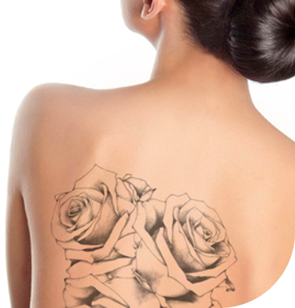 Tattoo for Removal